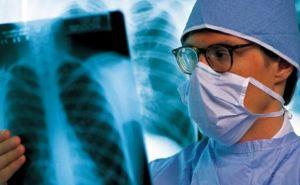 В ЛНР заверили, что контролируют ситуацию с заболеваемостью туберкулезом