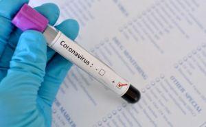 В Украине зафиксировано 21584 случая коронавирусной болезни