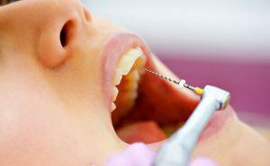 Реставрация зубов: основные способы
