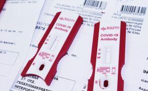 Кому необходимо сделать тест на антитела к коронавирусу перед вакцинацией от COVID-19
