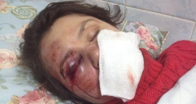 Милиция расследует жестокое избиение журналистки Татьяны Чорновол