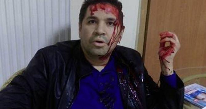 В Харькове избили кандидата в мэры