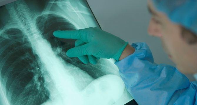 Как уберечь себя от туберкулеза